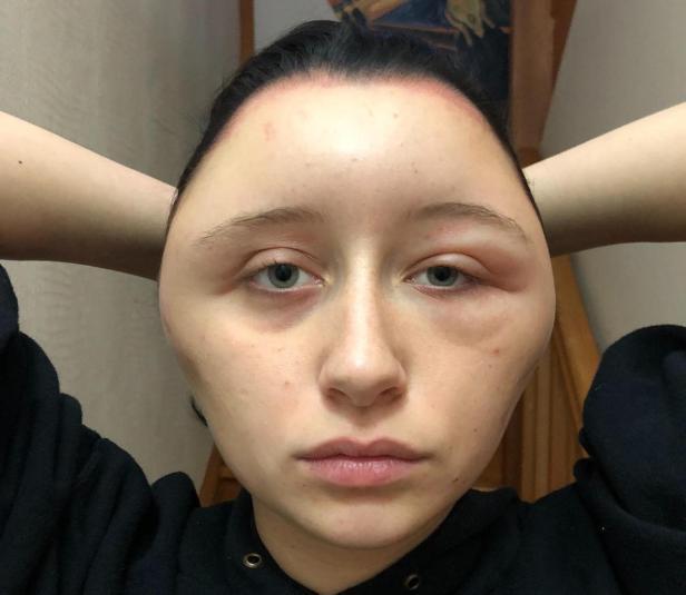 Estelle 19 ans allérgique au PPD